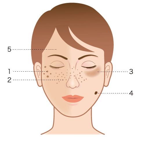 spots_freckles_dullness