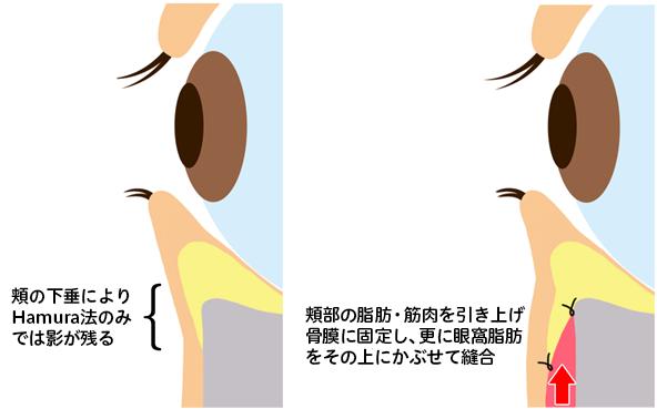 Hamura法+頬部吊り上げ