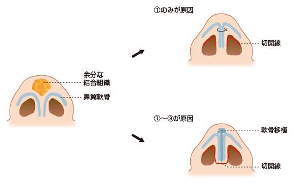 鼻尖形成術(+軟骨移植)