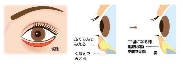 Hamura法(ハムラ法)
