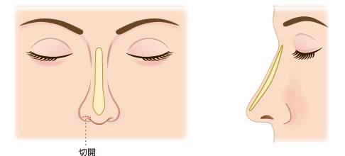 インプラントによる隆鼻術