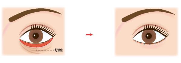 下眼瞼除皺術(皮膚切除)