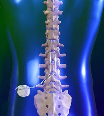 SCS(脊髄刺激療法)
