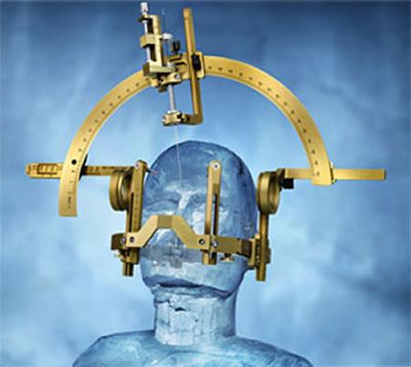 定位脳手術装置